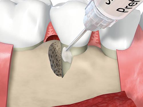 エムドゲインを使用した歯周組織再生療法